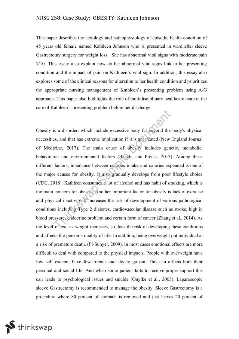 Dissertation on obesity
